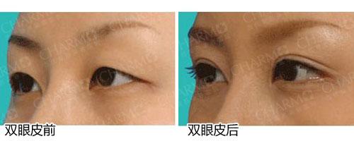 韩式切开法双眼皮图片一个月