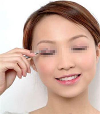 微创双眼切开术 双眼皮的微创时代