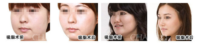 脸部细胞结构图