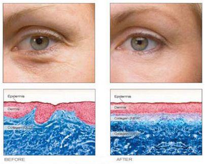 皮肤医师揭发:口服胶原蛋白都是骗人的?
