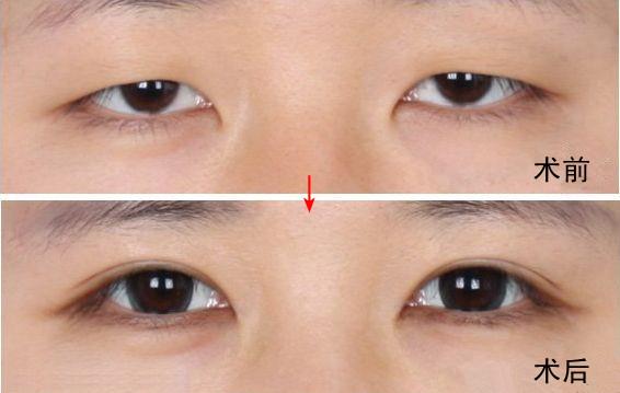 切开法重睑术效果对比图【点击咨询价格及技术详情】-专家解析双眼