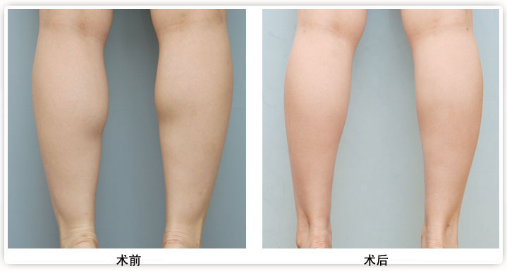 瘦腿的方法有很多,怎样才能快速瘦腿?当代整形专家指出,大部分人没有找对正确的瘦腿方法所以见效缓慢。瘦腿针是目前为安全有效的瘦腿方法,不同于传统的瘦腿手术,它更加自然、安全、快速,是目前十分流行的微整形。  瘦腿效果对比图 瘦腿针的瘦腿原理 瘦腿针使过度活跃的肌肉平静下来达到瘦腿的目的,不手术,不开刀,安全可靠,无创无痛,无需麻醉,术后效果自然,无副作用,十分钟便可完成注射,注射后一周即可见到瘦腿效果,一个月后达到佳,一般瘦腿效果保持6到8个月,多次注射可有更持久的效果。
