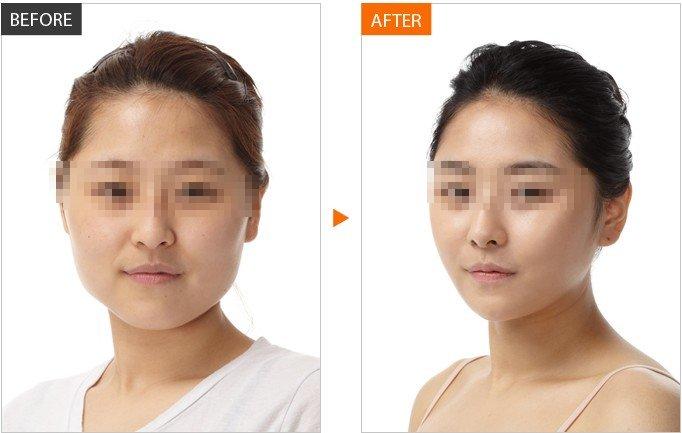 如今,要想快速将国字脸变成瓜子脸,打瘦脸针是一种非常理想的瘦脸方法。打瘦脸针,其实是在我们的咬肌部位注射肉毒素,它可以麻痹控制肌肉运动的神经,从而导致肌肉萎缩,脸自然也就变小了。不过,如果注射医生技术不过关,药品非正品的话,那么可能会带来一些副作用,甚至有时情况会很严重。所以,专家建议求美者到正规医院打瘦脸针。  当代瘦脸针真实案例 注射瘦脸针有副作用吗? 从一些明星打瘦脸针的经历我们可以得知,该瘦脸方法有不开刀、见效快的优势,但如果操作不当,瘦脸针是存在一些有副作用的,较常见的是双脸不对称或是注射部位肌