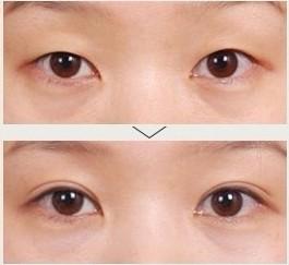 双眼皮手术全过程
