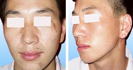 疤痕红眼 图片素材