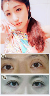 稍小,三年前在广州一家整形机构做了欧式双眼皮.手术效果并不理想